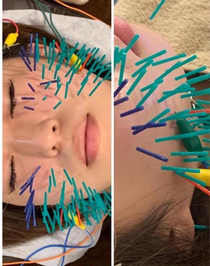🦔スッキリ小顔!120本鍼ハイブリッド美容鍼+EMS+マイクロカレント+カッサ+ローラ鍼