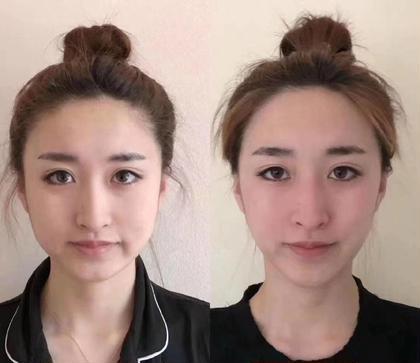 小顔美肌(洗顔  マサッジ 小顔ヒアルロン酸導入 美白パック )リピーターは6000円,5回コース25000円。