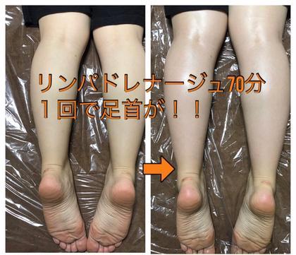 デスクワークで浮腫み切った足も、リンパドレナージュでスッキリ! warmth所属・warmthオーナーHarunaのフォト