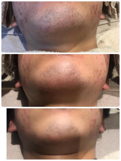 施術前→1回目施術後→2回目施術後 美容ライト脱毛でお肌も綺麗になっています✨