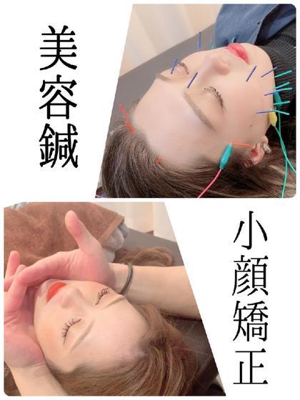 【特別小顔コース】美容鍼+小顔矯正【各3回】