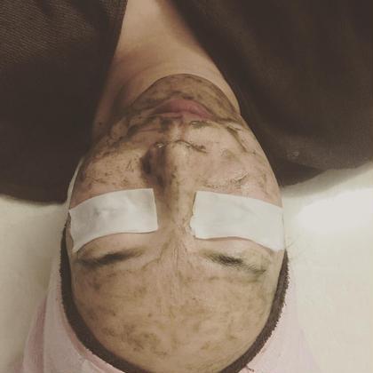 菅貞子ピーリングは すぎな、セージ、トウキンセンカエキスなど 厳選された9種類のハーブ成分をお肌に導入、 細胞を活性化させ 古い肌を取り去り剥離が始まり、 新しく綺麗な肌を外に出します。 ✨肌質改善に期待できます✨