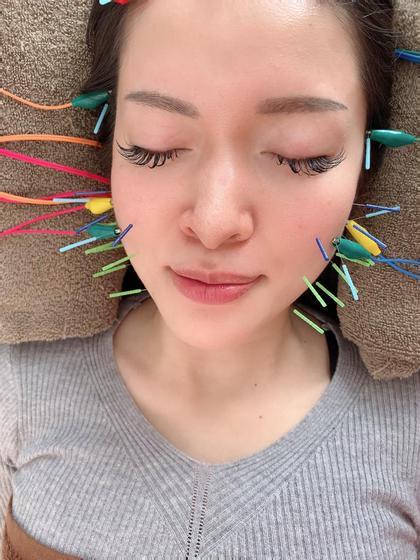 ✨肌荒れにも美容鍼✨(電気鍼+首のマッサージ)吹き出物、ニキビ
