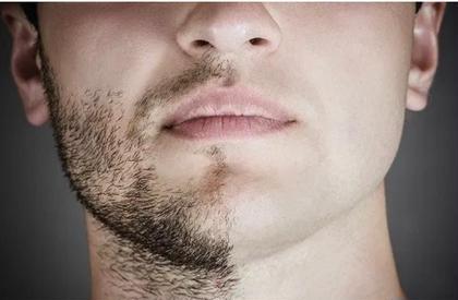 【木.日限定メンズ脱毛】某医療クリニックと同じ脱毛方式を導入しています⭐️痛みや赤みの出にくい髭脱毛☘️お試しを!