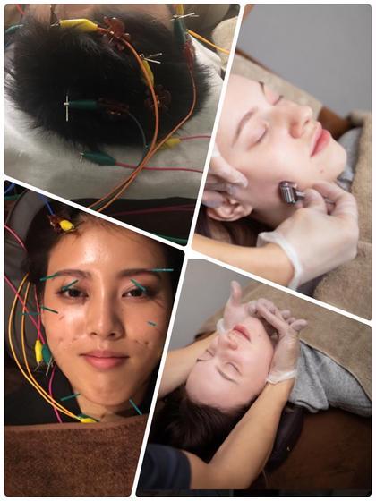🉐小顔コース👩電気バリブラシ興味ある方必見!毛髪活性低周波美容鍼+電気美容鍼30本以上+小顔矯正