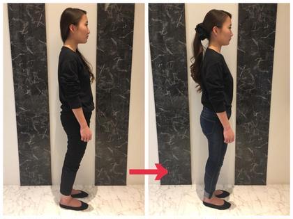 【✨人気No1✨】迷ったらコレ‼️根本改善✨小顔&骨盤矯正+姿勢診断 初回60分体験