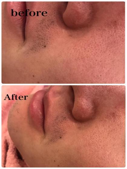 メンズ 光フェイシャル メンズ くすみも消えてシミも浮き上がってきたので1週間後にはツヤ肌完成です!
