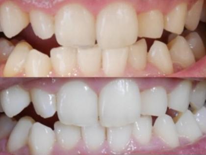 2回照射×3日のお客様です♪ 歯のトーンの上がりが早いとモチベーションも上がります(`・ω・´)∩ ティンクルならではの上がり方なんです☆