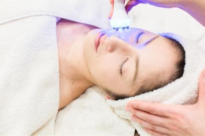 【美白・シミ】エレクトロポレーション+ヒト幹細胞マスク  悩み別に合わせて美容成分をカクテルしお肌の深部まを届けます🌹