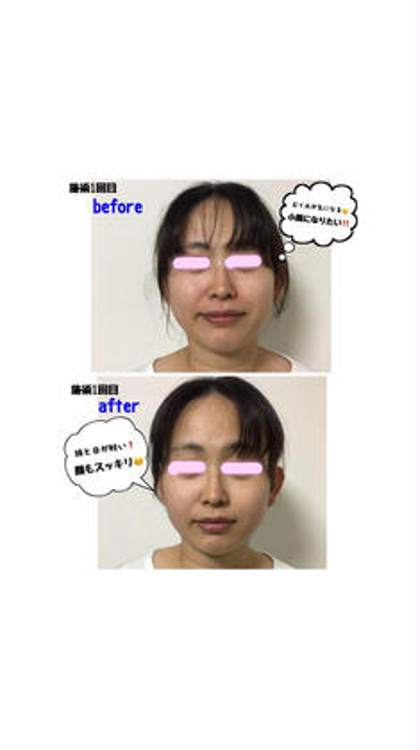 人気No. 1❤️🌟小顔整顔🌟お試し45分※お化粧したままOK🙆♀️