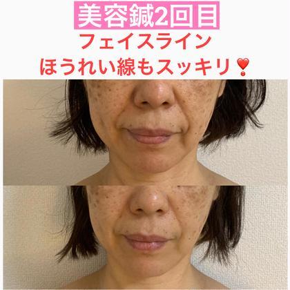 【美容鍼よくばりコース】小顔は背中と首の施術で変わる❣️背中ラジオ波トリートメント+で小顔効果を更にUP⤴️