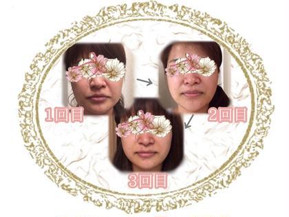 小美顔サロン所属の小美顔サロンのエステ・リラクカタログ