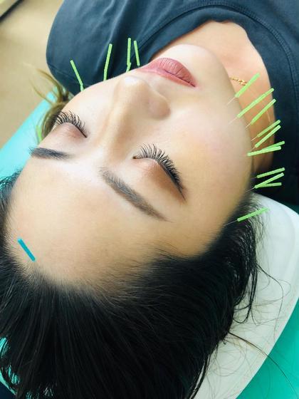 🔰美容鍼トライアルコース🔰人気の美容鍼をお得な初回プライスで体験🉑