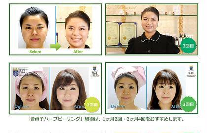 菅貞子ハーブピーリングは回数を重ねられると効果が増して肌質改善に繋がります✨