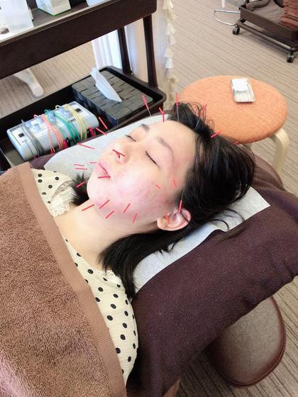 美容鍼30本 鍼灸整骨院いろは所属・O.Seiyaのフォト