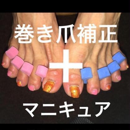 【巻き爪ケア(一本)+マニキュア塗布(10本)】(70分)6,000円