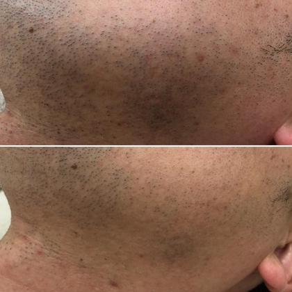 メンズ様必見!カミソリ負けしやすい方、お髭を脱毛してお肌をいたわってあげて下さい!