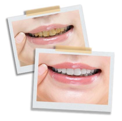 [ご新規様限定]歯のセルフホワイトニング💚1回で効果あり✨✨大人気お試しコース    笑顔に自信がでる😁