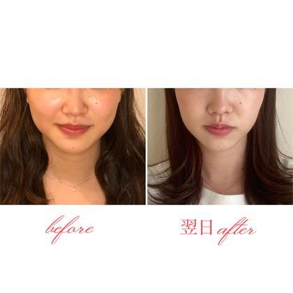 《🔰初めての方》とにかく小顔になりたい方へ✨むくみ改善小顔矯正💆🏻♀️(30分)