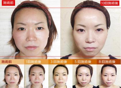 小顔整体研究所KSラボ栄店所属のKSラボ栄店のヘアカタログ