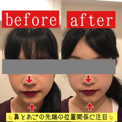 ✨ご新規限定✨美容鍼に選べるオプション2つ!贅沢VIPコース❤️