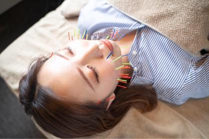 5月限定価格でご案内🙆♂️小顔に特化した美容鍼(50本)に今なら無料電気が付いてきます!