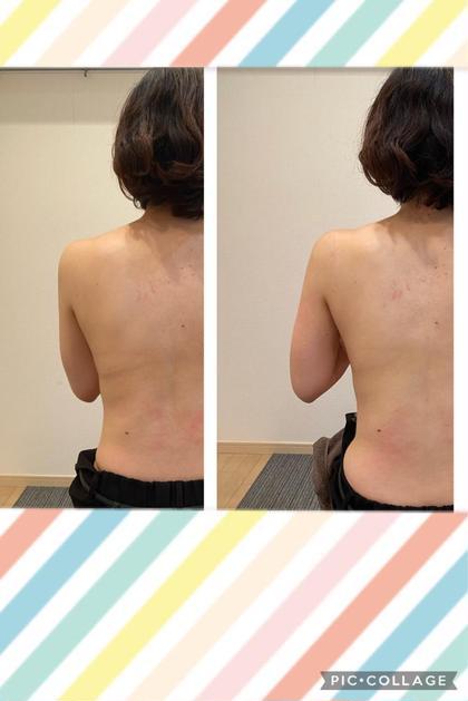 【女性限定 痩身】夏までに痩せたい方必見✨自分が見えない背中のケアの体験✨一度でも背中スッキリ✨