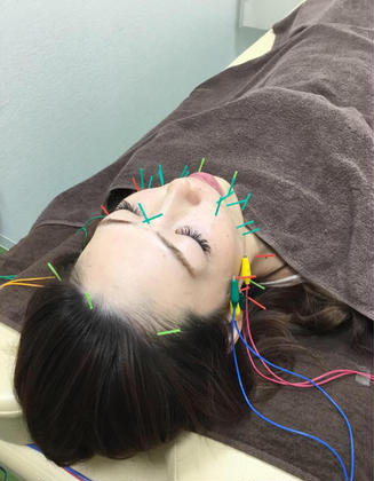 ✨🌹まごころ鍼灸整骨院オリジナル美容鍼〜楊貴妃コース〜世界三大美女鍼💖💖