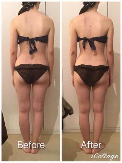自信のある後ろ姿へ❤️腰回り集中60分✨関節リンパドレナージュ&キャビテーション