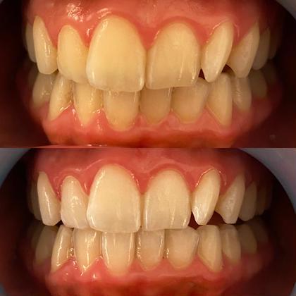 【オーラルケアで感染症対策】🦷美歯口コース🦷歯磨き→溶液噴射→照射(8分)×3の通常価格同等コースを破格でご提供👀