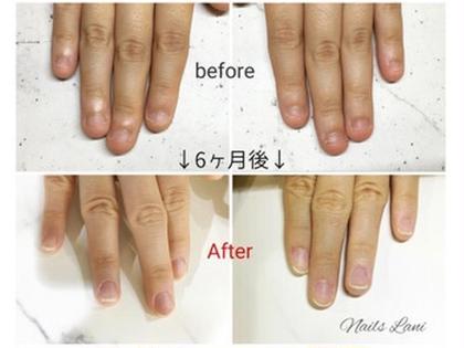 噛み爪コースの施術写真です。 短くなってしまった爪に、スカルプを載せることで自爪を保護し、伸ばすことができます。 短い爪でお悩みの方、是非いらして下さい。 ネイルズラニの