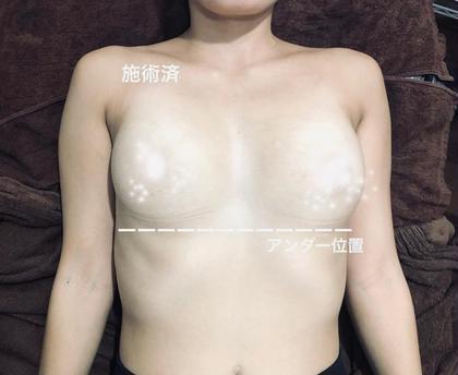 ✨一番人気✨痛くない光豊胸 フラッシュバストアップ体験【minimo限定】