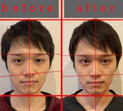 顔面矯正を2回行った結果です!鼻の歪みが矯正され、顎のズレによって膨らんで見えた輪郭もシュッとしました(*^^*)目鼻立ちもくっきりなりましたね🎶