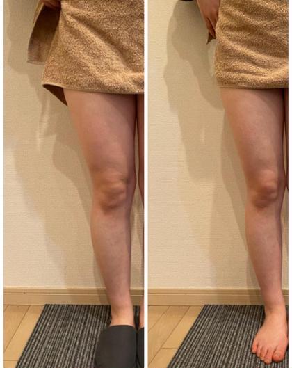 【女性限定 痩身】コロナ太り解消・夏までに痩せたい方必見✨痛みなし✨脚スッキリ✨むくみ改善