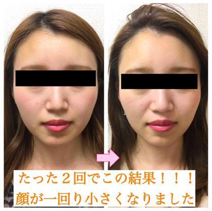 《小顔エステコース》小顔整体 × 小顔デコルテリンパ × 美肌エステ✨70分