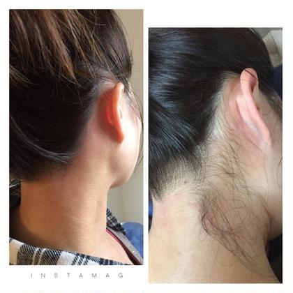 うなじ脱毛になります(*^^*) 耳下の毛をとってあげると首が長く見え、うなじ美人に❤︎ 思わずアップの髪型にしたくなっちゃいます❤︎ plaisir~プレジール~所属・宮崎愛美のフォト