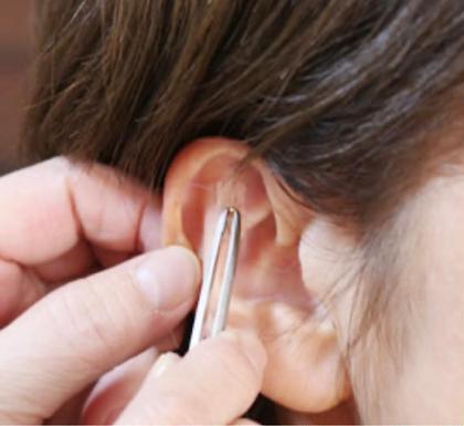 耳つぼダイエット  サプリを使わないので、いつでも始められます。金属アレルギーの方も安心してご利用いただけます。用ご相談