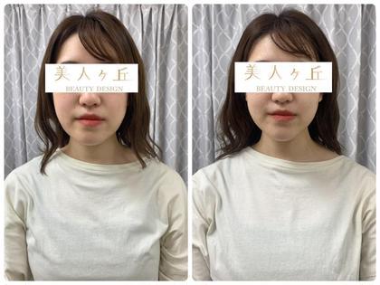 ミニモ限定🌟頭蓋骨・小顔矯正+セルキュア美顔器❤️詳細をご覧ください🌟施術30分メイクしたままOK