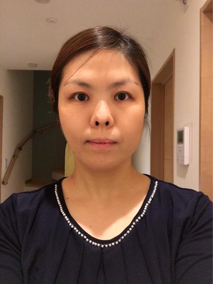 小顔造顔エステ1回  3時間後 首から鎖骨にかけてリンパを流して、最後顔全体を小顔にしていきます。 完全予約制プライベートサロン所属・喜多千穂のフォト