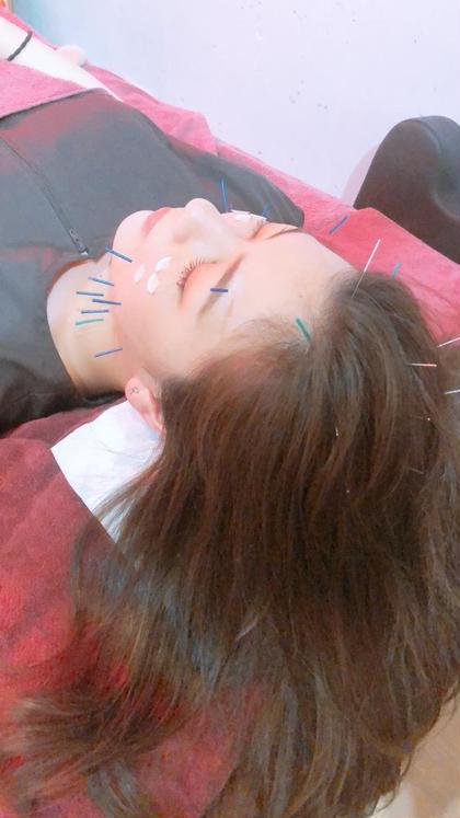 より効果を感じたい方に…初めての方にもオススメ⭐️美容鍼50本※顔灸付き、メイクされたままでもOK☆