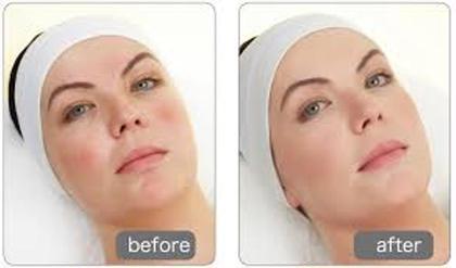 クリスティーナはアトピー肌などのトラブルはだに対応したピーリングトリートメントです。香りがよく、リラックスして施術を受けて頂きながら、透明感と保水力を高められます。 60~80分(肌状態により変化)の施術後で見違える変化があるので、オーナー自身お気に入りのメニューです ASITIS所属・YUKA のフォト