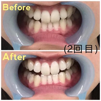 2回目リピートのお客様です。 歯に艶が生まれトーンもかなり明るくなっております!