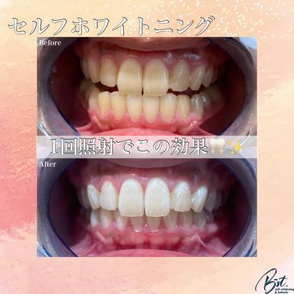 🌷OPEN記念🌷【セルフホワイトニング】ナチュラルで自然な美歯に🦷40分¥3630