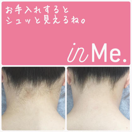 《脱毛 ・1パーツ ¥980 税抜》初回