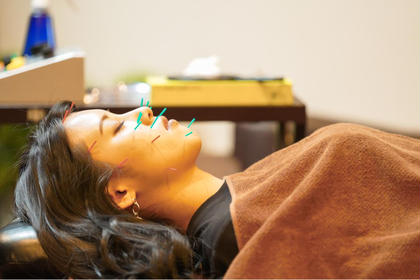 【新生活応援】美容鍼Bコース🤡美顔鍼+ローラー鍼🐡むくみ、たるみ、肌質改善に!