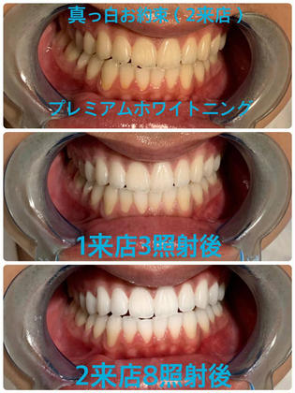 セラミックの様な歯になりたい方はこちら‼️プレミアムホワイトニングコース☆合計8回2来店 <本数無制限>