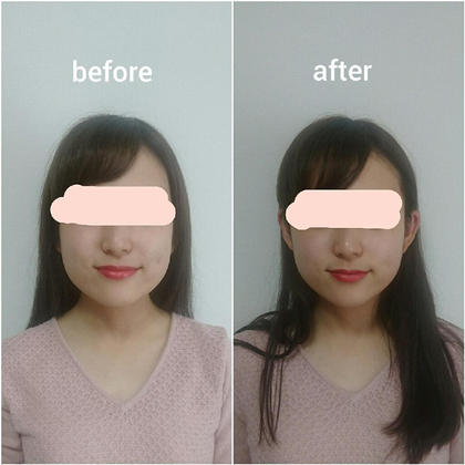 【♥小顔美人コース♥】目指すは同級生で一番若い顔❇仕上げのヘッドスパでスッキリ♪