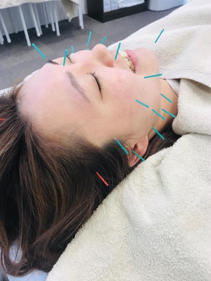 ヒロスポーツ鍼灸整骨院所属の中林世奈のエステ・リラクカタログ