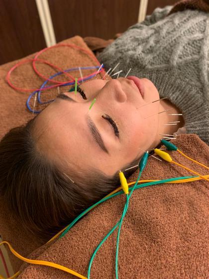 美容鍼➕パルス(電気鍼)➕小顔矯正