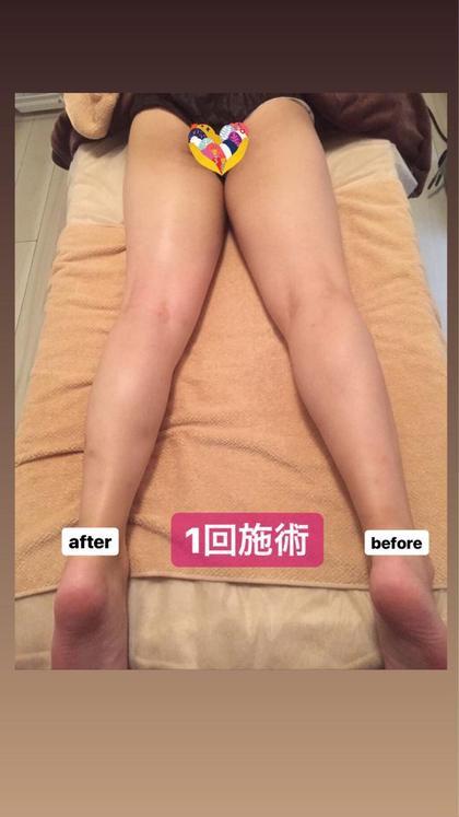 通常オプション ボディのみ枠  1ヵ所40分 ¥5,500(足・腕・お腹・背中)  気になる部位に狙い撃ち👈